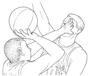 バスケットボール時の保護眼鏡は大変重要