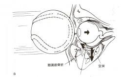 大人から子供のスポーツどきにおける目の怪我を予防する保護眼鏡ゴーグルのご提案