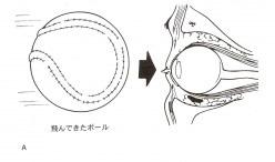 スポーツどきにおける目の怪我を予防する保護眼鏡ゴーグルのご提案
